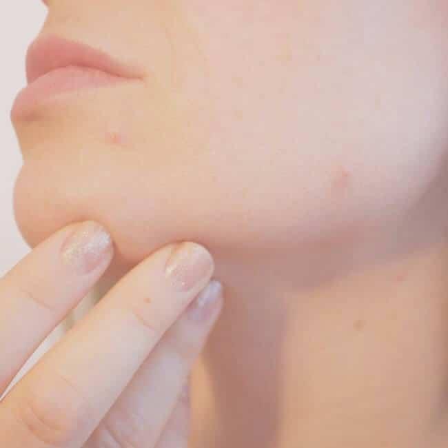 can copper face masks prevent acne